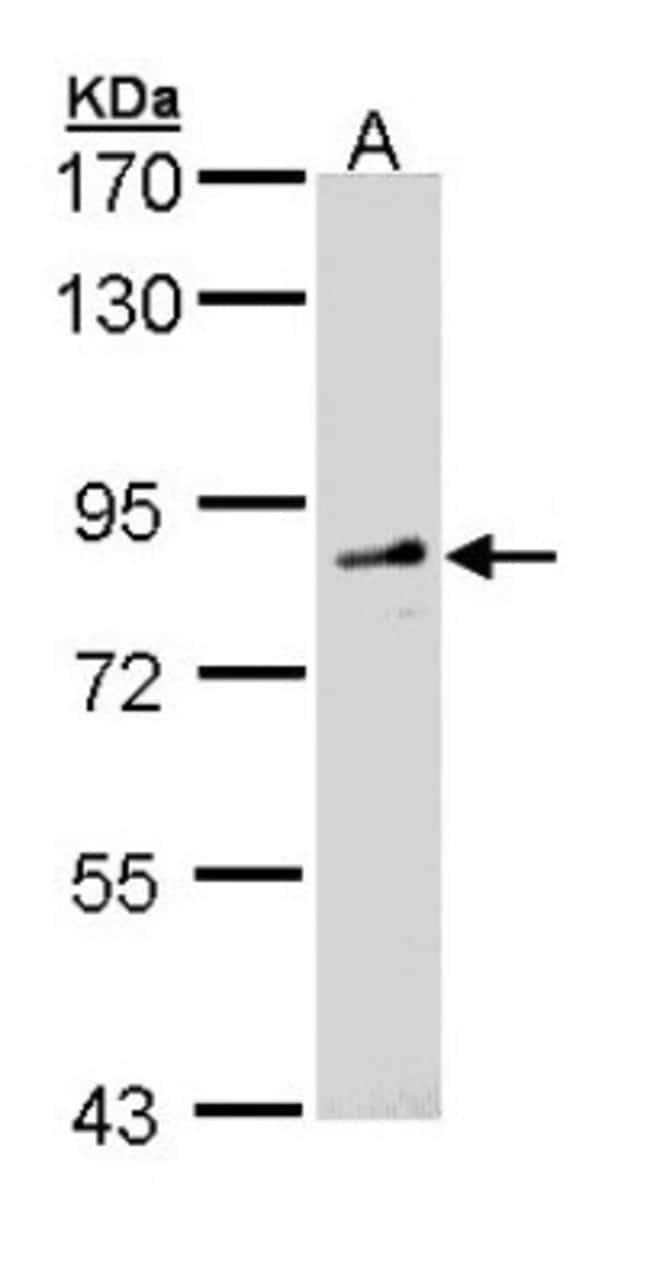 anti-FGD4, Polyclonal, Novus Biologicals 0.1mg; Unlabeled:Life Sciences
