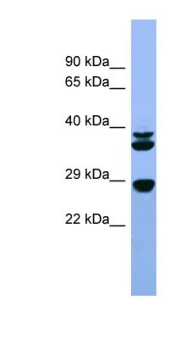 FGF-3 Rabbit anti-Rat, Polyclonal, Novus Biologicals 100µL; Unlabeled:Life
