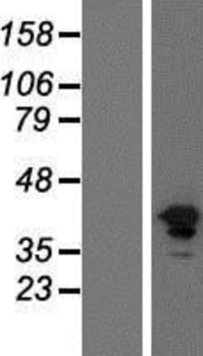 Novus Biologicals FGFR1 Overexpression Lysate 0.1mg:Life Sciences