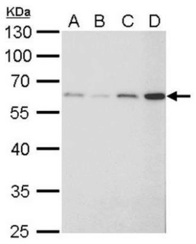 FGFR5/FGFRL1 Rabbit anti-Human, Polyclonal, Novus Biologicals 0.1mg; Unlabeled:Life