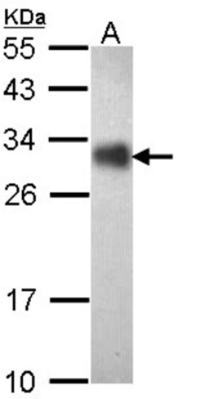 anti-FHL2, Polyclonal, Novus Biologicals 0.1mL; Unlabeled:Life Sciences