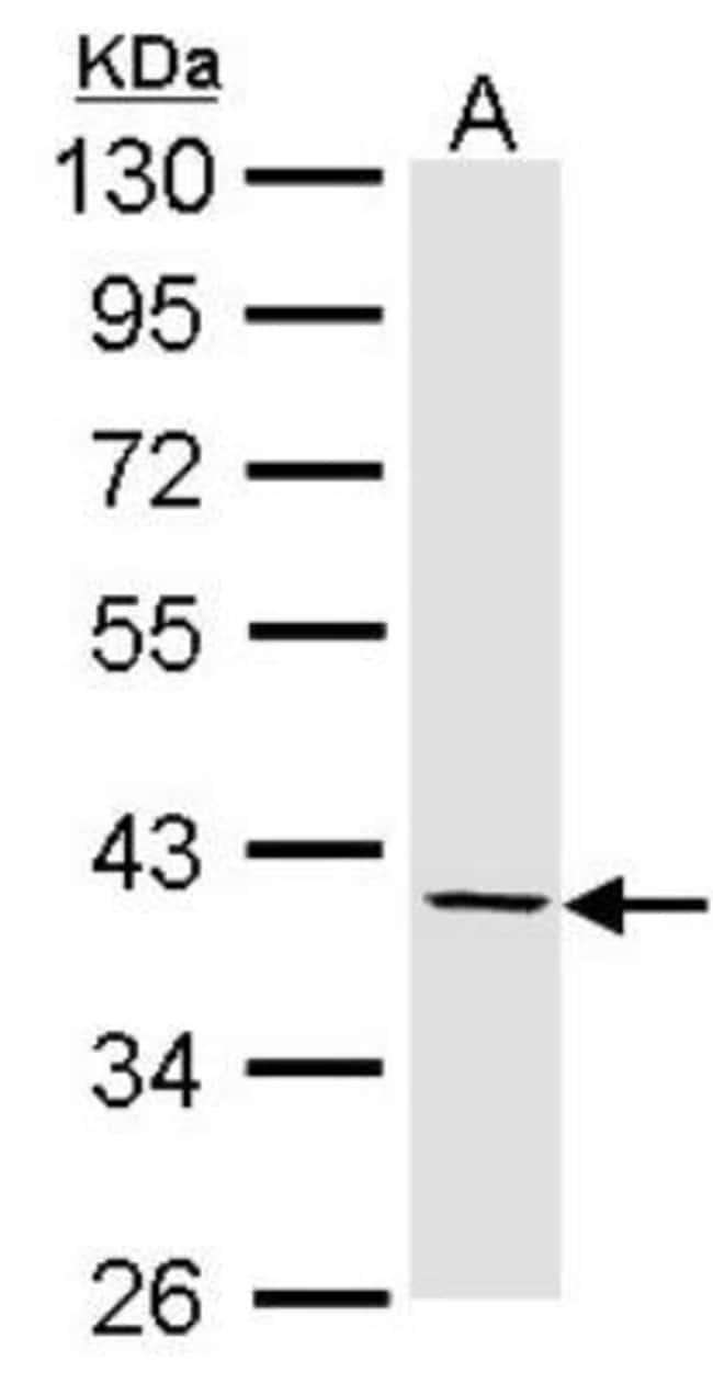 anti-Fibromodulin/FMOD, Polyclonal, Novus Biologicals 0.1mg; Unlabeled:Life