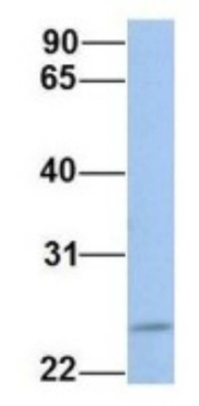 FKBP25 Rabbit anti-Human, Polyclonal, Novus Biologicals 20µL; Unlabeled