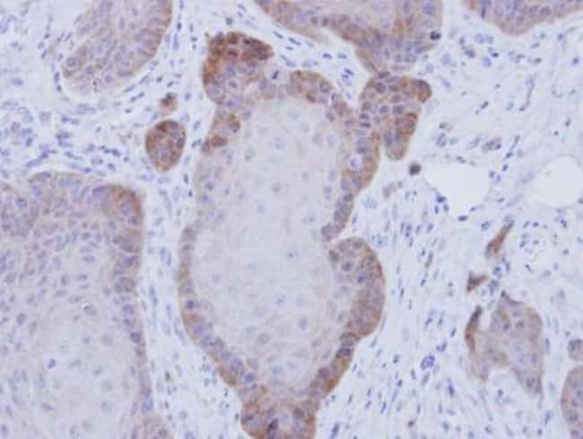 anti-FKBP52/FKBP4, Polyclonal, Novus Biologicals 0.1mL; Unlabeled:Antibodies