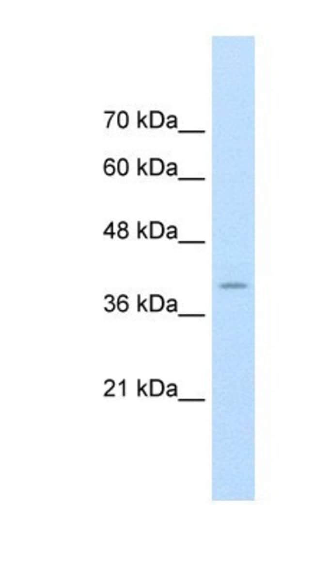 FKBP6 Rabbit anti-Human, Polyclonal, Novus Biologicals 20µL; Unlabeled