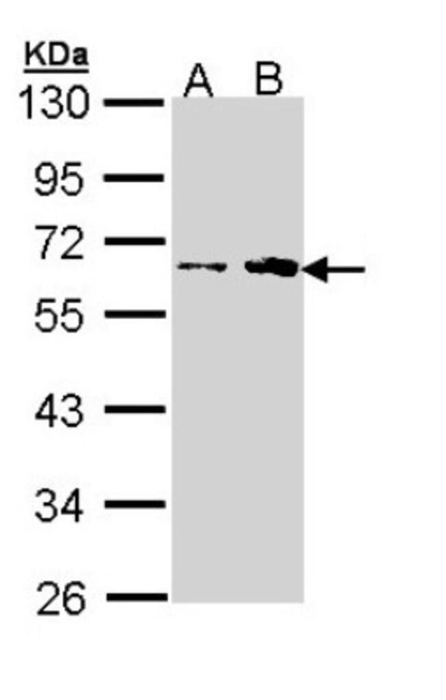 anti-FKTN, Polyclonal, Novus Biologicals 0.1mg; Unlabeled:Life Sciences