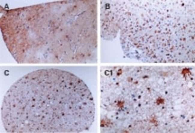 anti-FLIP, Polyclonal, Novus Biologicals:Antibodies:Primary Antibodies
