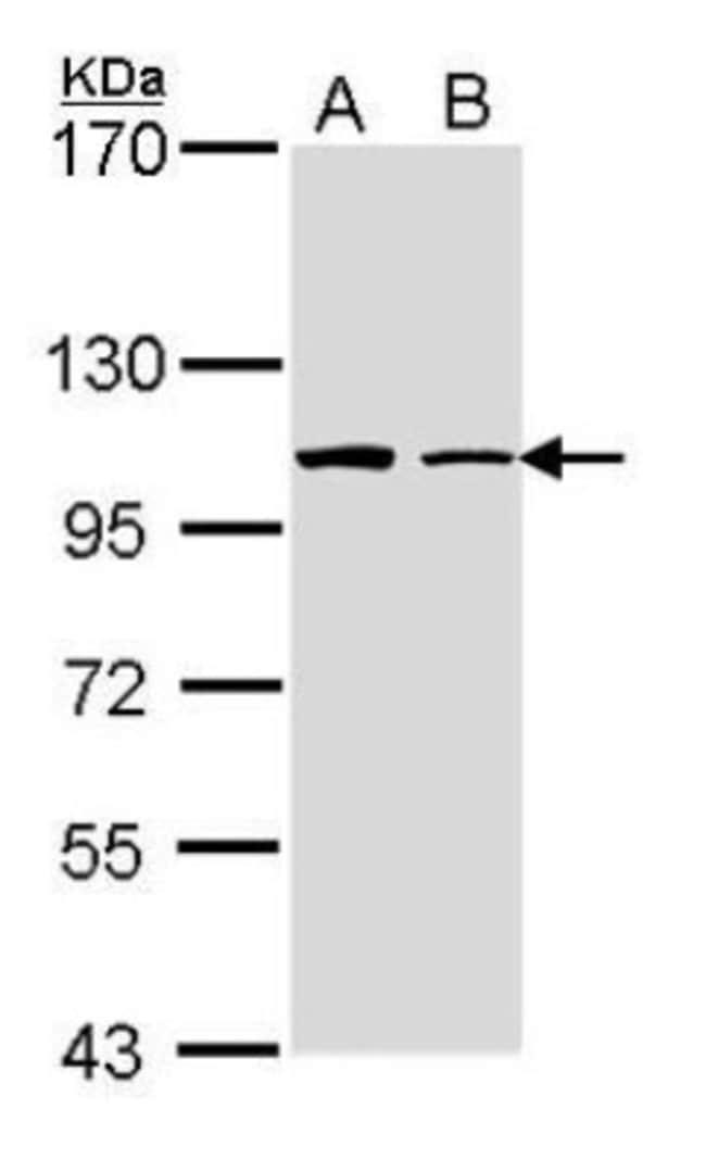anti-FMNL1, Polyclonal, Novus Biologicals 0.1mL; Unlabeled:Antibodies