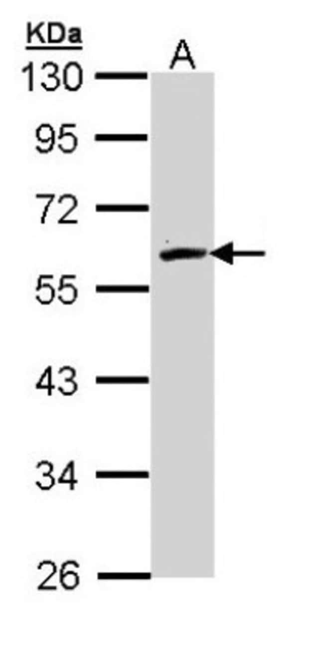 anti-FMO2, Polyclonal, Novus Biologicals 0.1mg; Unlabeled:Life Sciences