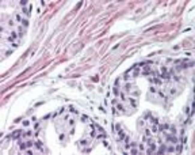 anti-FNTA, Polyclonal, Novus Biologicals:Antibodies:Primary Antibodies
