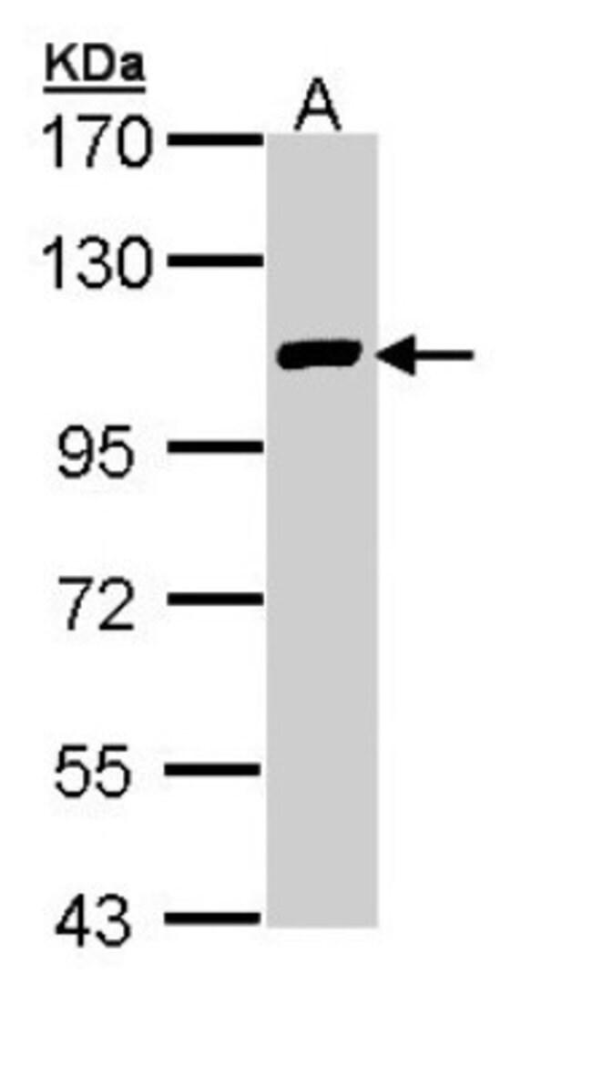 anti-FOG2, Polyclonal, Novus Biologicals 0.1mL; Unlabeled:Life Sciences