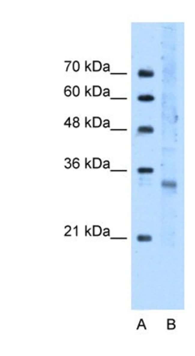 FOXI3 Rabbit anti-Human, Polyclonal, Novus Biologicals 100µL; Unlabeled:Life