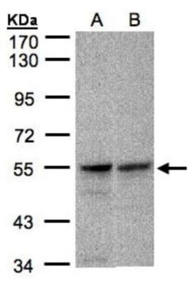 anti-FOXRED1, Polyclonal, Novus Biologicals 0.1mg; Unlabeled:Life Sciences