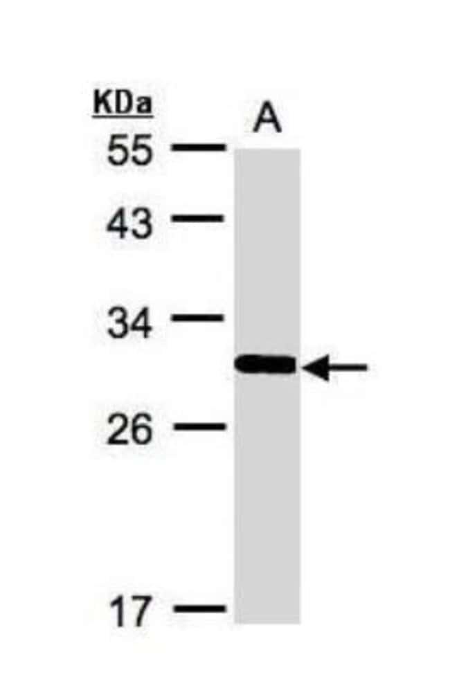 anti-FRAT1, Polyclonal, Novus Biologicals 0.1mg; Unlabeled:Life Sciences