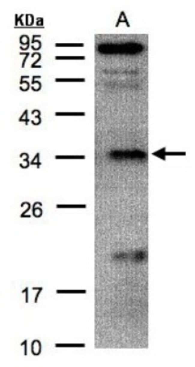anti-Fructosamine-3-kinase-related, Polyclonal, Novus Biologicals 0.1mL;
