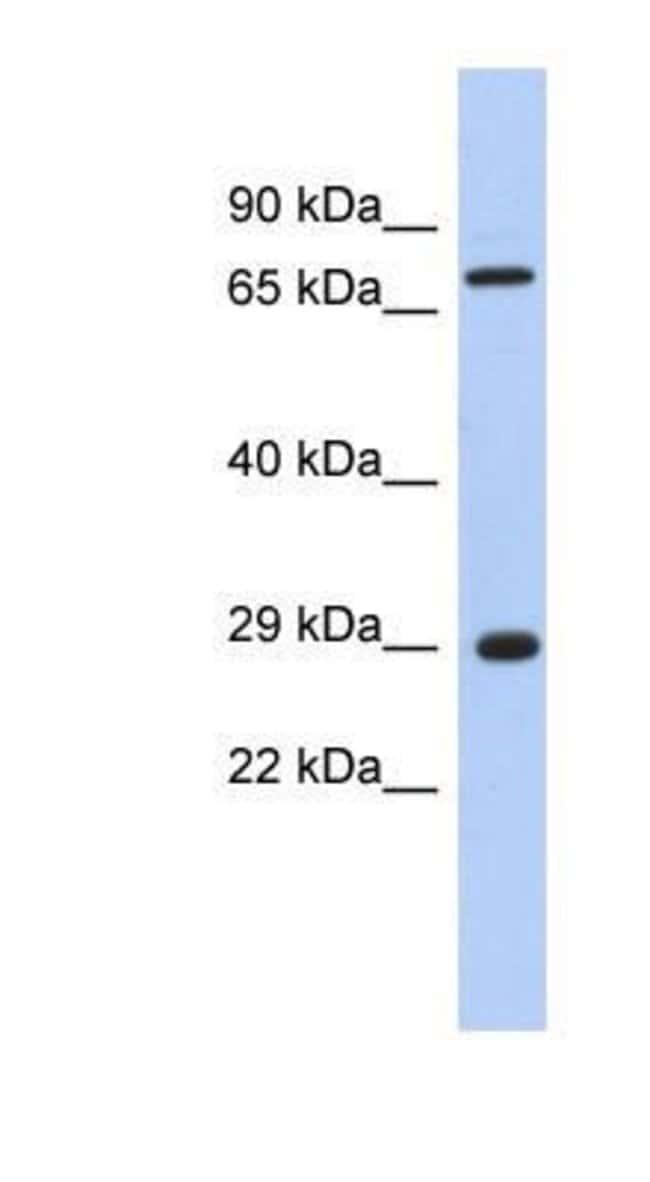 FTS Rabbit anti-Human, Polyclonal, Novus Biologicals 20µL; Unlabeled