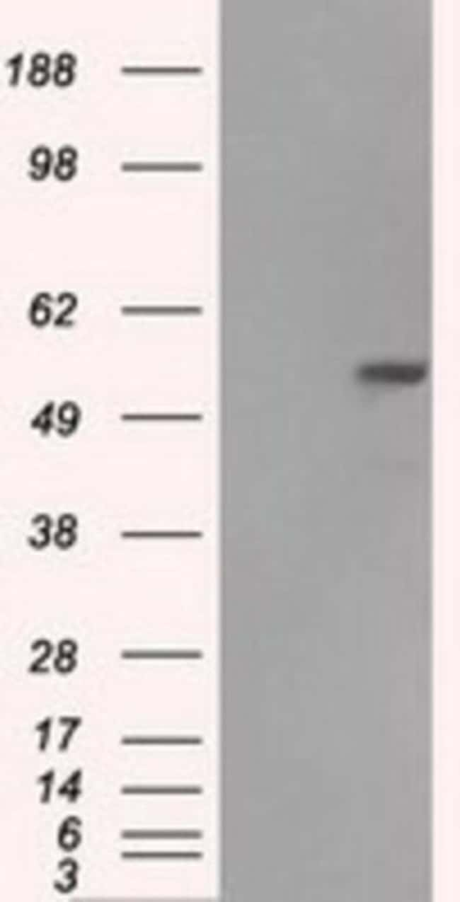 anti-Fumarase, Clone: 1F10, Novus Biologicals 0.1mL; Unlabeled:Life Sciences
