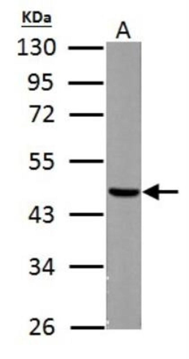 anti-Fumarase, Polyclonal, Novus Biologicals 0.1mg; Unlabeled:Life Sciences
