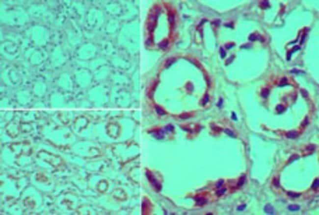 anti-Furin, Polyclonal, Novus Biologicals:Antibodies:Primary Antibodies