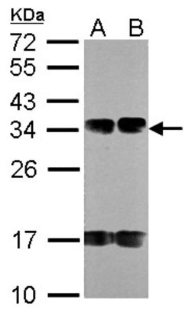 anti-FUS2, Polyclonal, Novus Biologicals 0.1mg; Unlabeled:Life Sciences