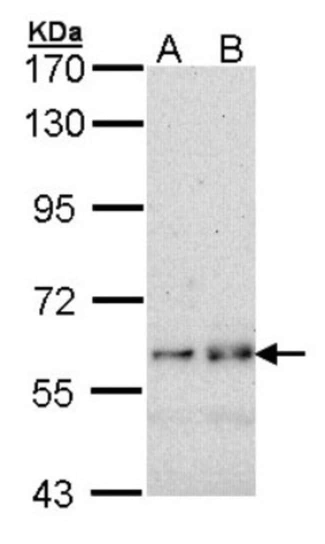 anti-Fyn, Polyclonal, Novus Biologicals 0.1mg; Unlabeled:Life Sciences