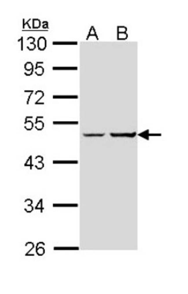 anti-G protein alpha, Polyclonal, Novus Biologicals 0.1mg; Unlabeled:Life