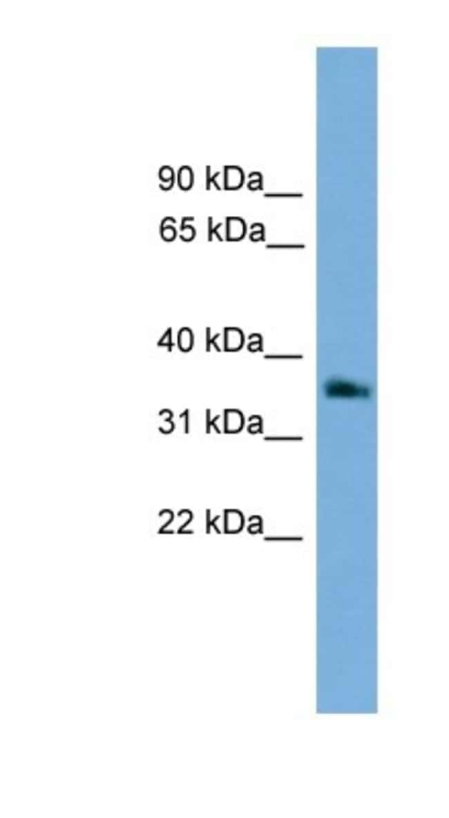 G protein beta 4 Rabbit anti-Human, Polyclonal, Novus Biologicals 20µL;