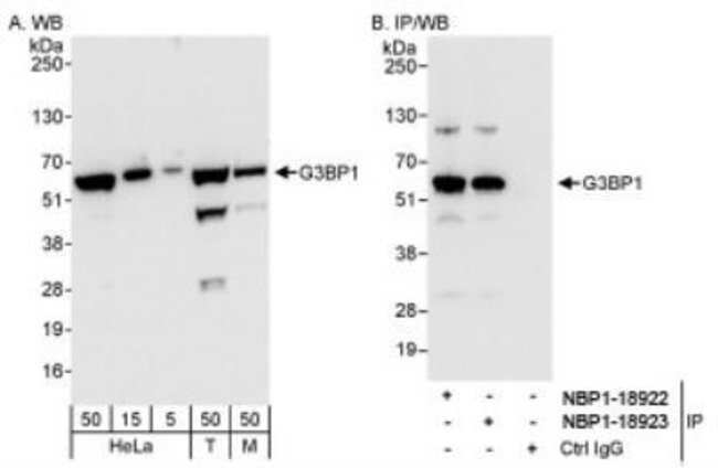 anti-G3BP1, Polyclonal, Novus Biologicals 0.1mL; Unlabeled:Life Sciences