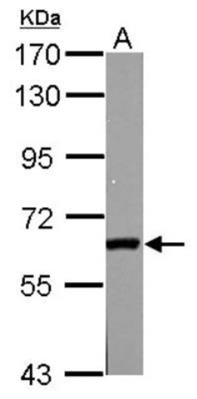 anti-GAD2/GAD65, Polyclonal, Novus Biologicals 0.1mg; Unlabeled:Antibodies