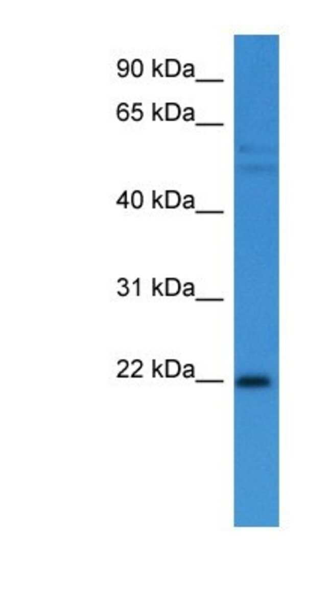 GADD45 alpha Rabbit anti-Human, Polyclonal, Novus Biologicals 20µL;