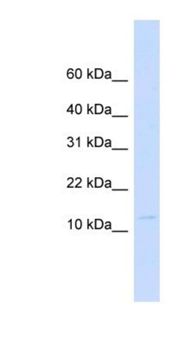 Galectin 13 Rabbit anti-Human, Polyclonal, Novus Biologicals 100µL;