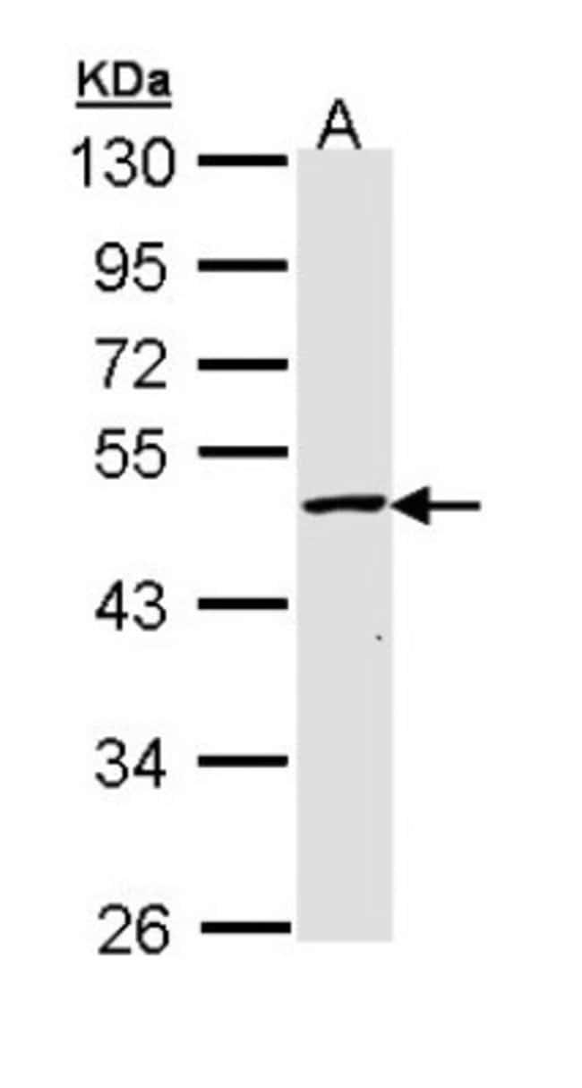 anti-GALK2, Polyclonal, Novus Biologicals 0.1mg; Unlabeled:Life Sciences