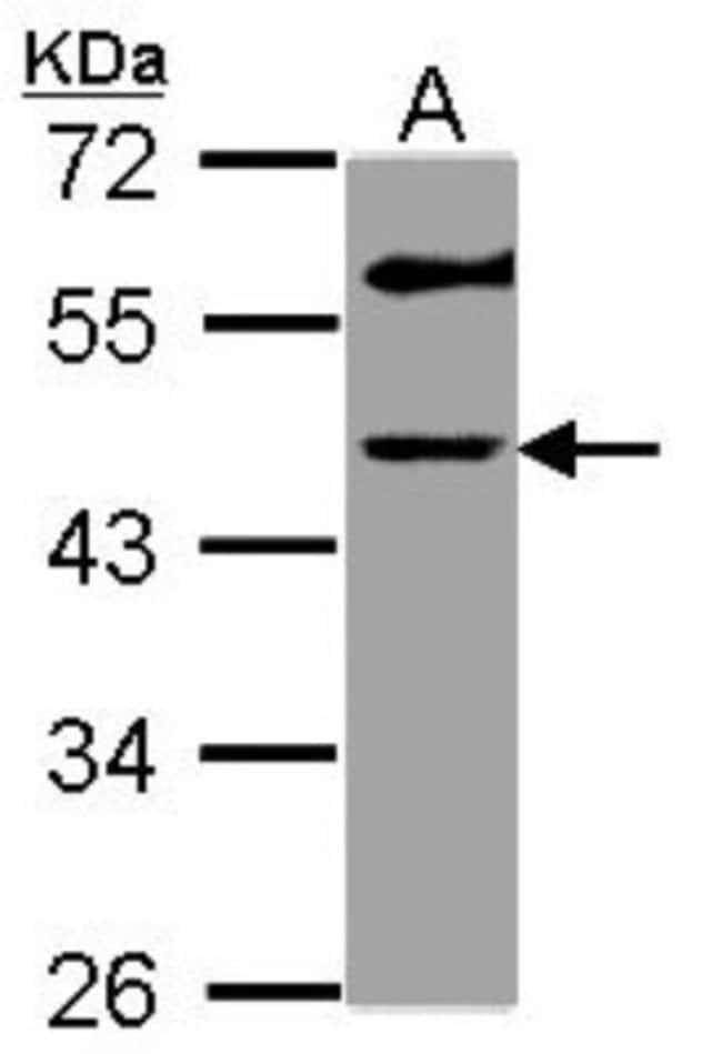 anti-GALT, Polyclonal, Novus Biologicals 0.1mg; Unlabeled:Life Sciences