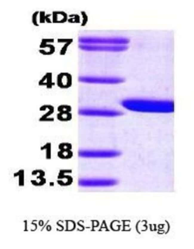 Novus Biologicals Human GAMT Protein 0.1mg; Unlabeled:Life Sciences
