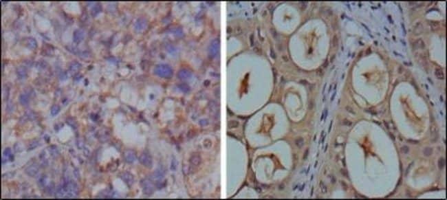 anti-GAPDH, Clone: 1A10, Novus Biologicals 0.1mL; Unlabeled:Life Sciences