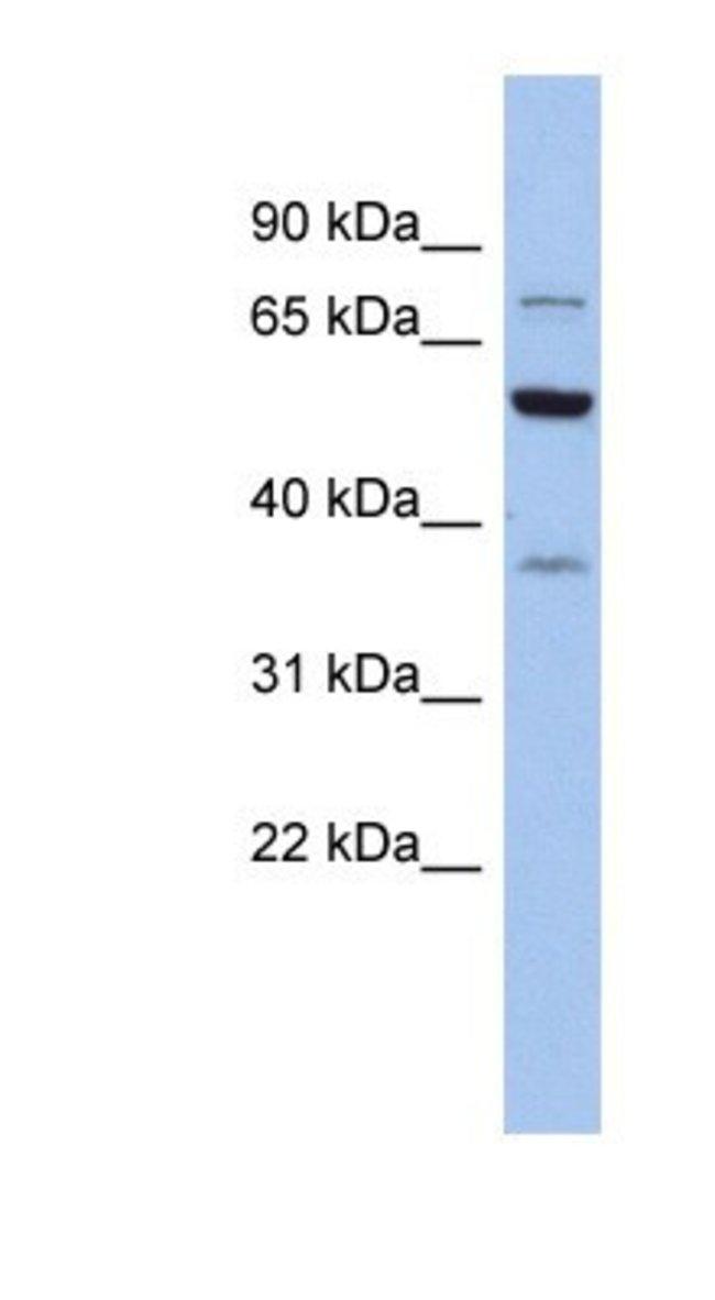 GARS Rabbit anti-Human, Polyclonal, Novus Biologicals 20µL; Unlabeled
