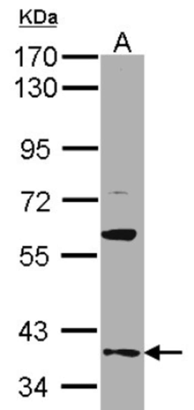 anti-GAS2L1, Polyclonal, Novus Biologicals 0.1mL; Unlabeled:Antibodies