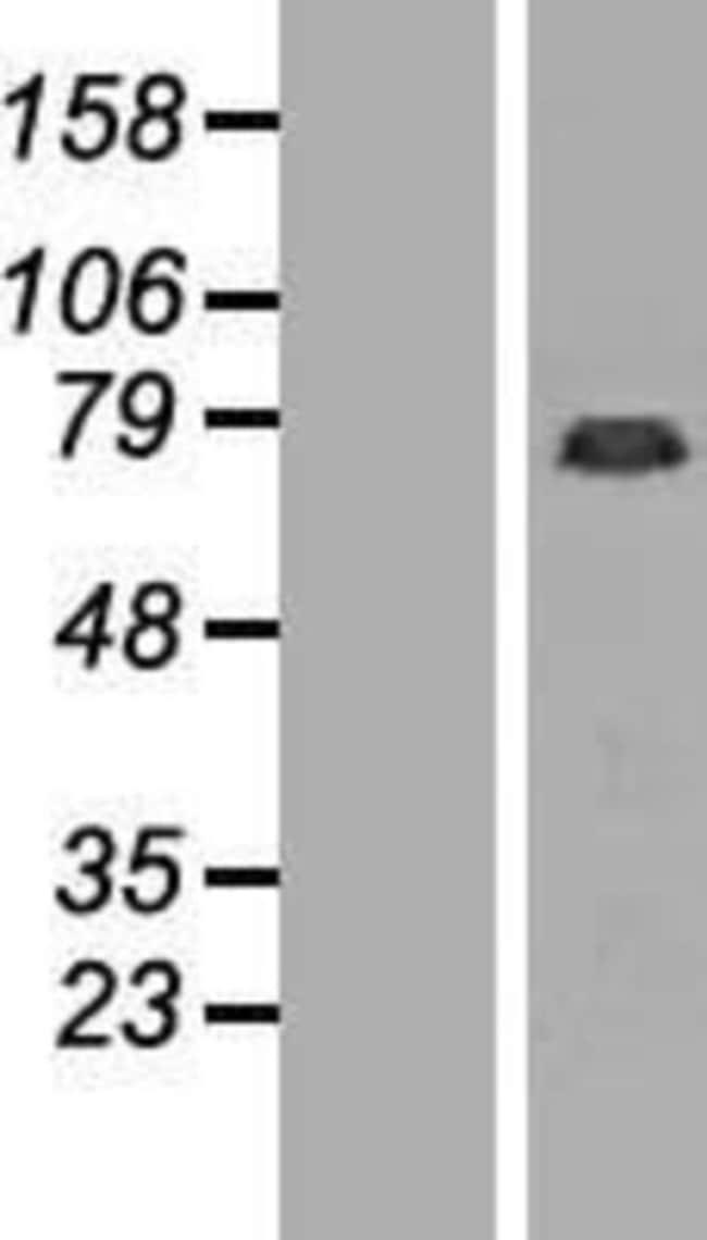 Novus Biologicals GAS2L1 Overexpression Lysate (Native) 0.1mg:Life Sciences