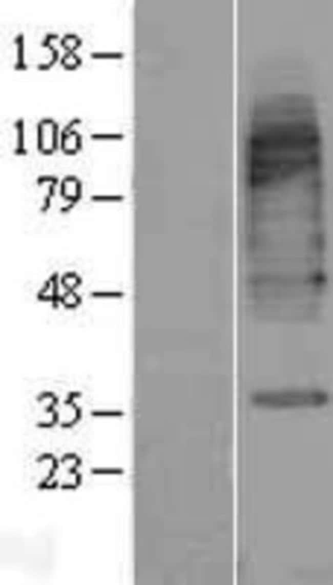 Novus Biologicals GAT3 Overexpression Lysate (Native) 0.1mg:Life Sciences