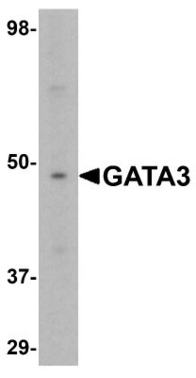 anti-GATA-3, Polyclonal, Novus Biologicals 0.1mg; Unlabeled:Life Sciences