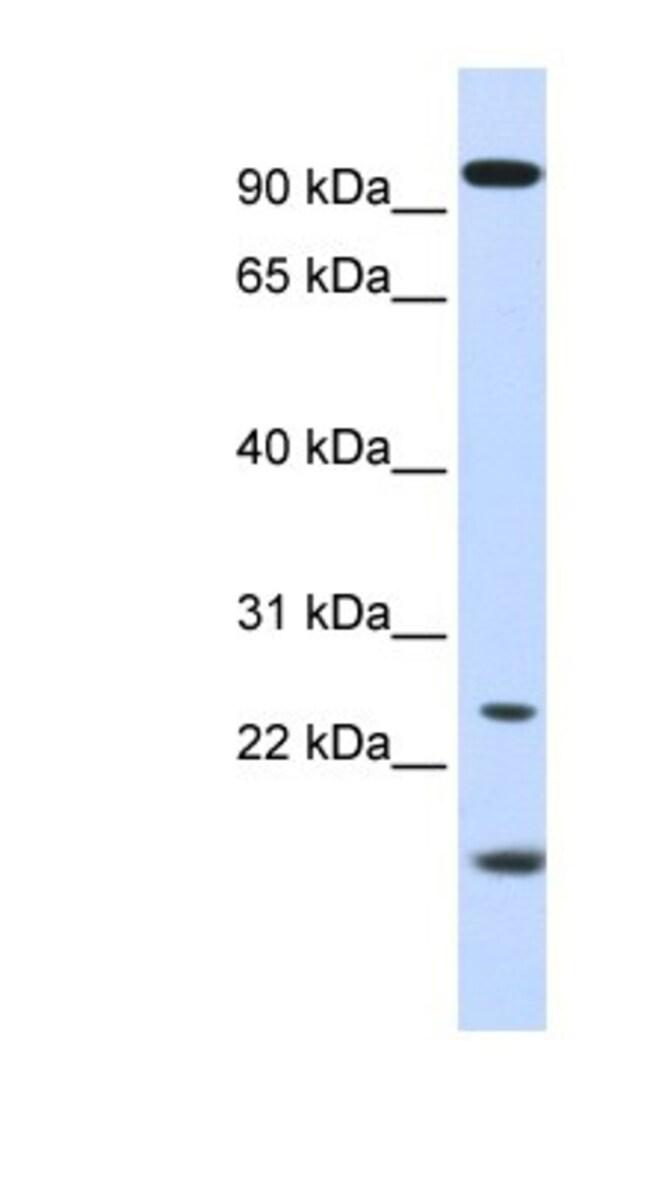 GCAP1 Rabbit anti-Human, Polyclonal, Novus Biologicals 20µL; Unlabeled