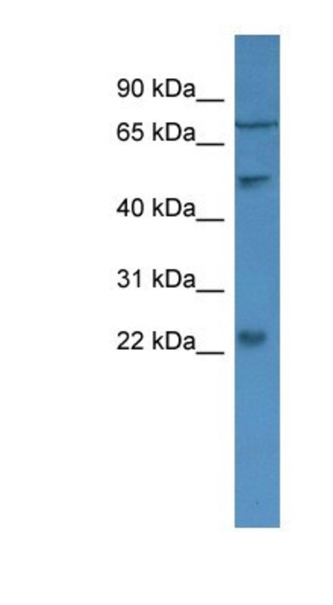GCAP2 Rabbit anti-Human, Polyclonal, Novus Biologicals 20µL; Unlabeled