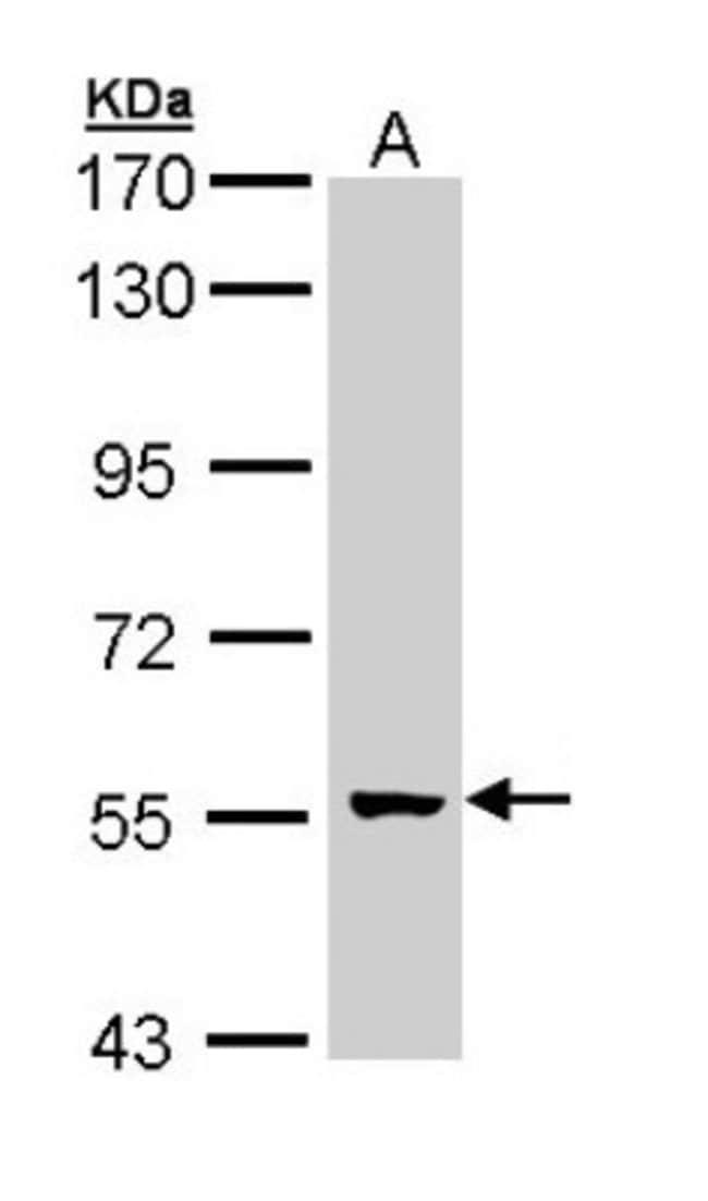 anti-GCM2, Polyclonal, Novus Biologicals 0.1mL; Unlabeled:Life Sciences