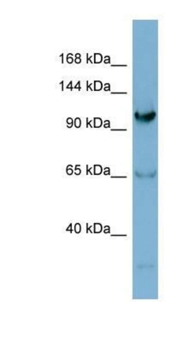 Gemin 4 Rabbit anti-Human, Polyclonal, Novus Biologicals 100µL; Unlabeled:Life
