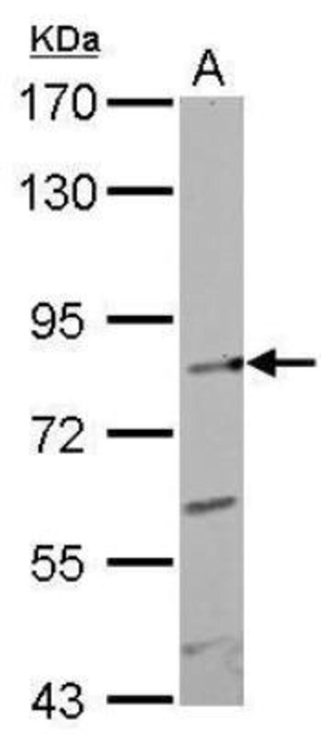 anti-GIT1, Polyclonal, Novus Biologicals 0.1mL; Unlabeled:Life Sciences