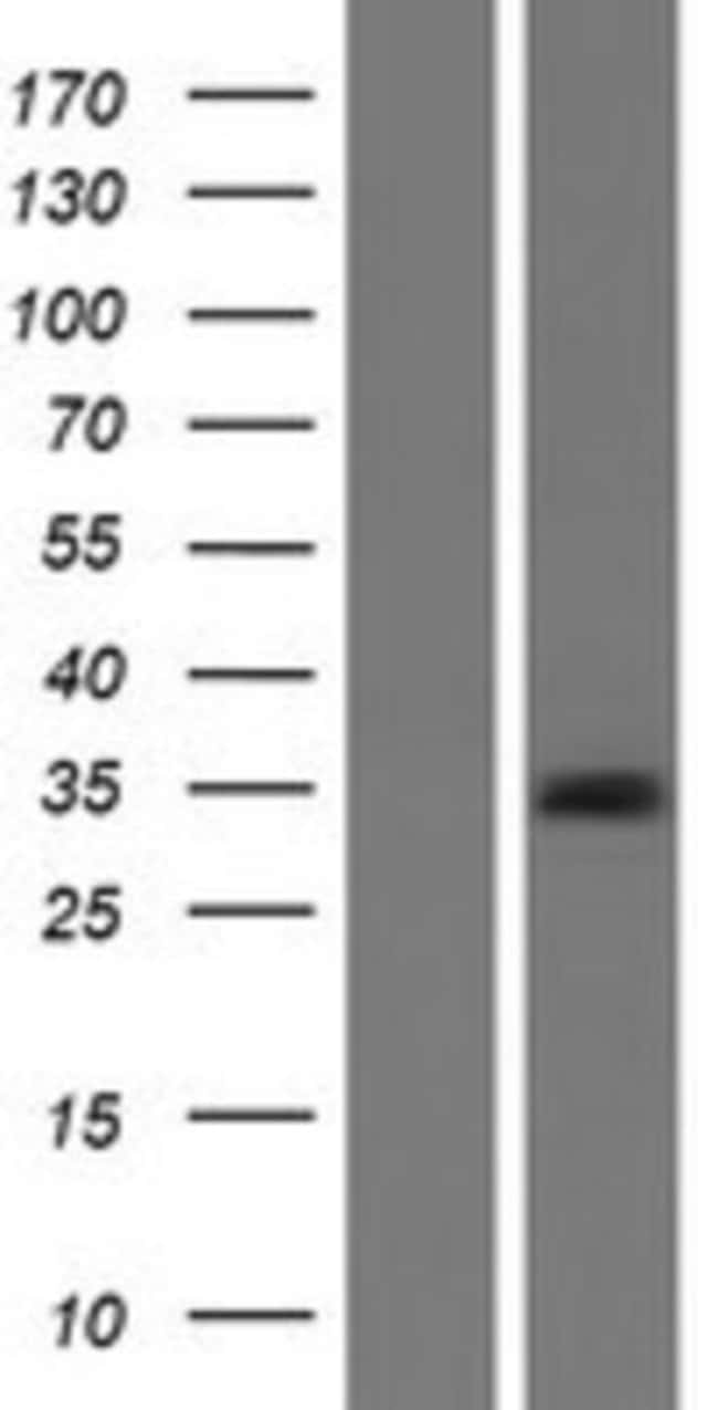 Novus Biologicals Connexin 32/GJB1 Overexpression Lysate (Native) 0.1mg:Life