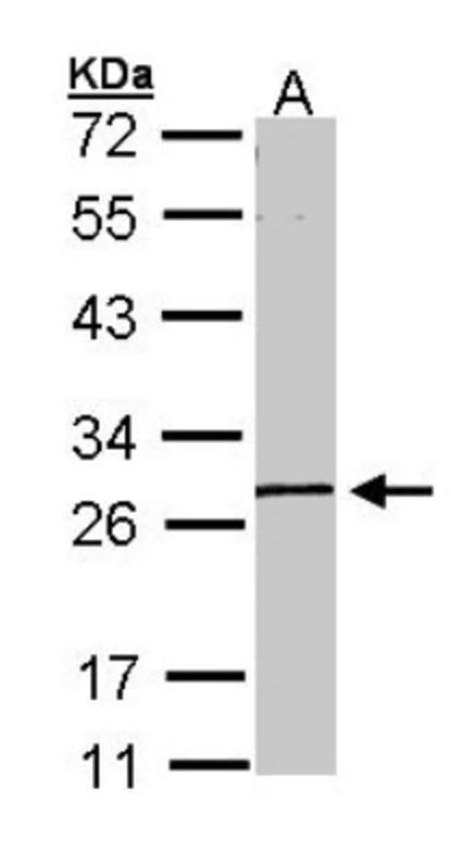anti-GK5, Polyclonal, Novus Biologicals 0.1mL; Unlabeled:Life Sciences