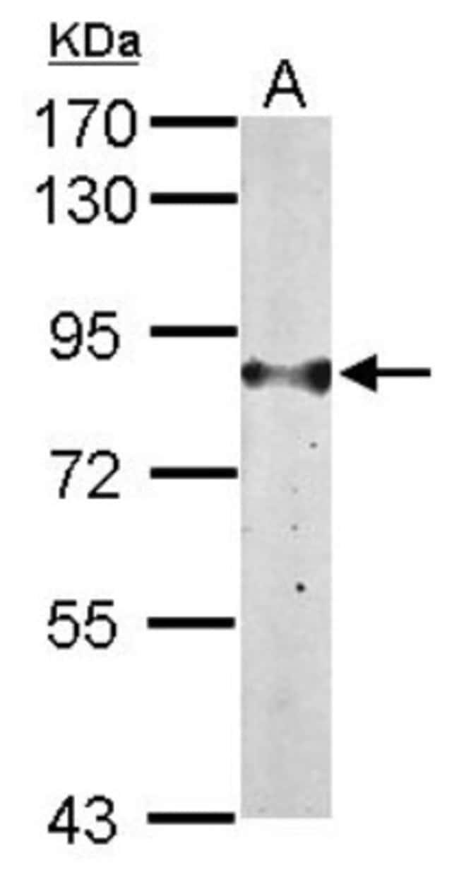 anti-Glucose 1-dehydrogenase, Polyclonal, Novus Biologicals 0.1mL; Unlabeled:Life