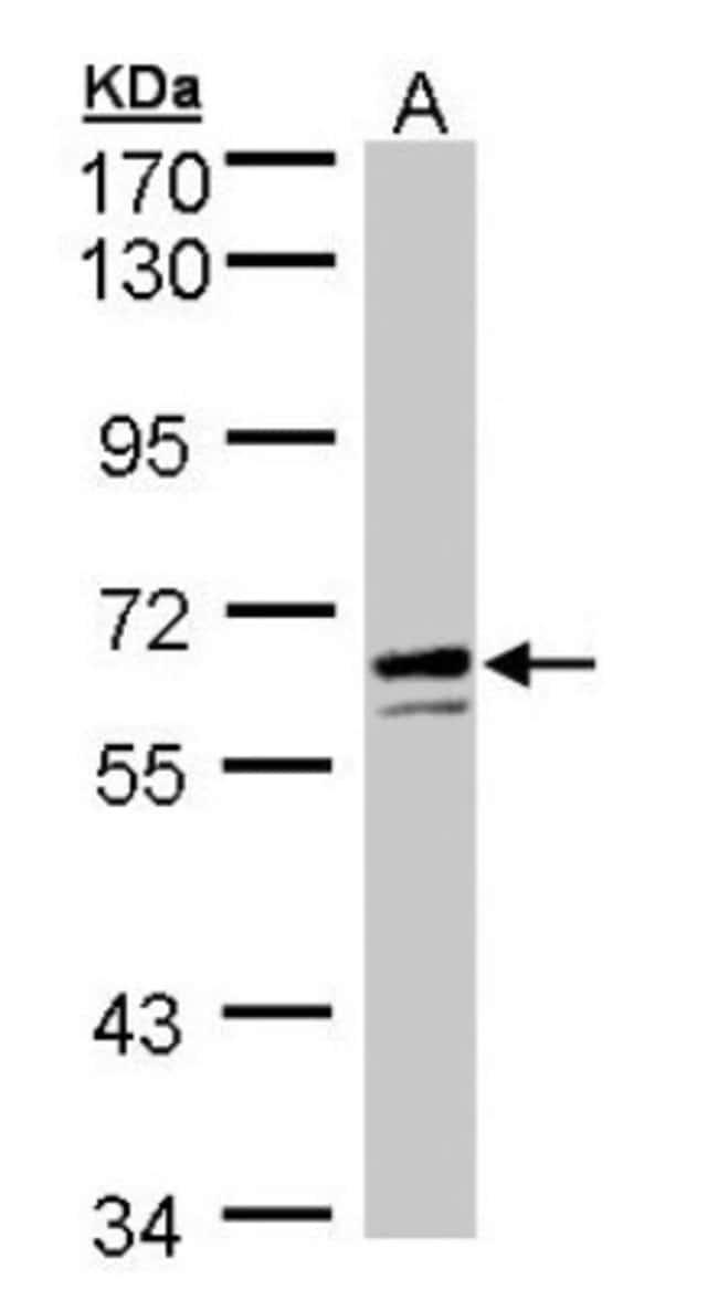 anti-Glucose 6 Phosphate Dehydrogenase, Polyclonal, Novus Biologicals 0.1mL;