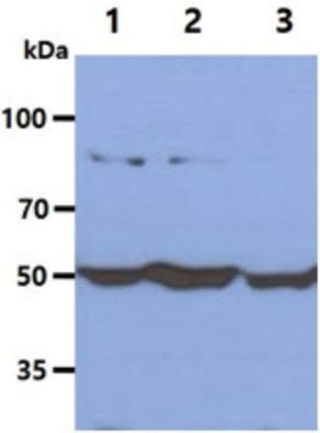 anti-Glucose 6 Phosphate Dehydrogenase, Clone: 2F6, Novus Biologicals 0.1mL;